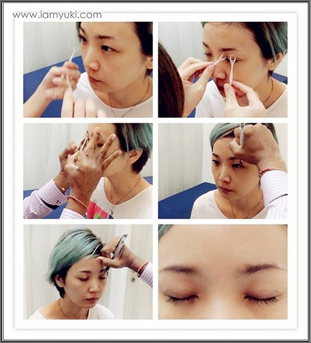 _Yuki scarless double eyelid centre for cosmetic rejuvenation surgery024001