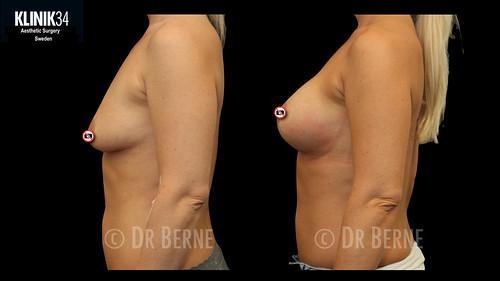 bröstlyft klinik34 facebook.023