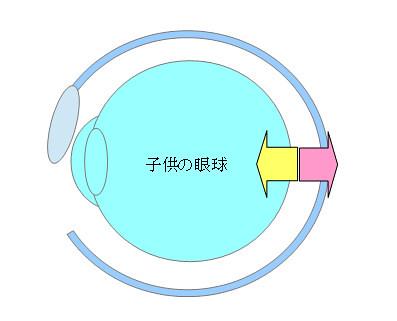 軸性近視に移行する原因とプロセス〜子供と成長期と一重まぶた〜+雑談