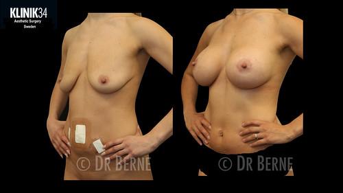 bröstlyft klinik34 facebook.036