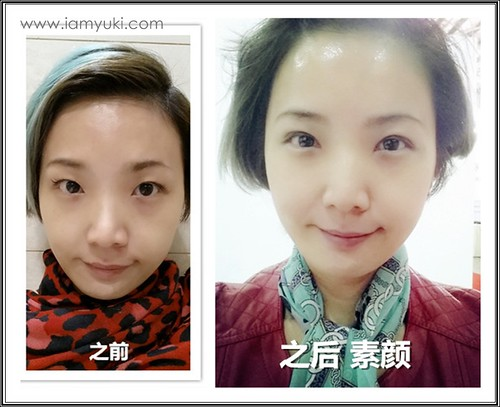 _Yuki scarless double eyelid centre for cosmetic rejuvenation surgery003001