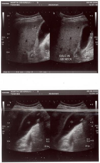 i what happens after gallbladder removal symptoms