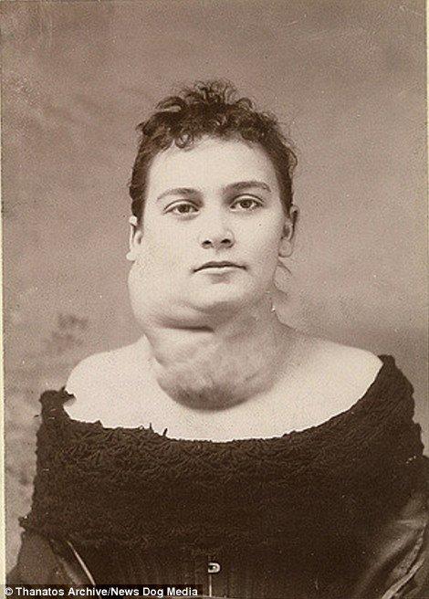 19 世紀流行的人類畸形秀 FREAKSHOW7