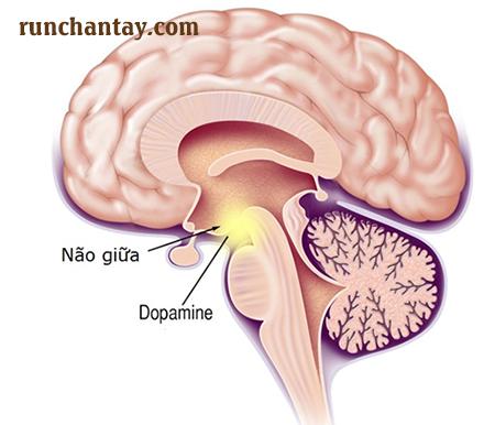 Bệnh Parkinson do thoái hóa thần kinh trung ương có tiến triển