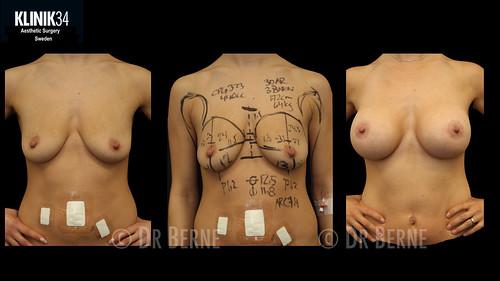 bröstlyft klinik34 facebook.033