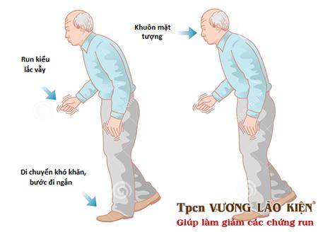 Những triệu chứng sớm của bệnh Parkinson
