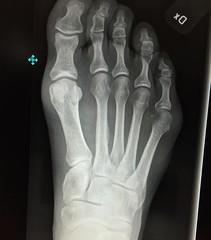 hand(0.0), arm(0.0), chest(0.0), finger(0.0), muscle(0.0), leg(0.0), human body(0.0), jaw(0.0), organ(0.0), radiography(1.0), medical radiography(1.0), x-ray(1.0), limb(1.0), medical(1.0),