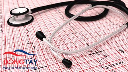 Điện tâm đồ là công cụ tiêu chuẩn để chẩn đoán rung nhĩ