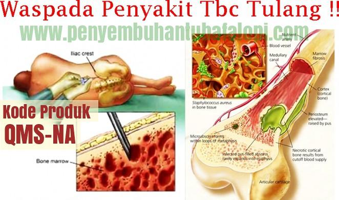 Obat Tbc Tulang