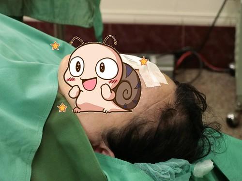 為什麼要從溫哥華回台灣找陳征宇眼科做白內障手術 (4)
