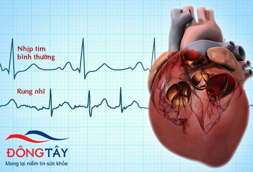 Rung nhĩ - Nguy cơ cao dẫn đến suy tim và đột quỵ