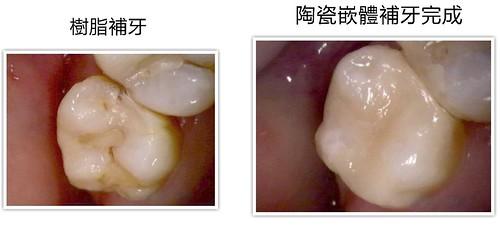 [台南] 補蛀牙有更好的選擇!讓佳美牙醫塗祥慶醫師告訴你01 (2)