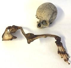 Kranium og højre arm til skelet af en 16 årig kvindelig Idiot