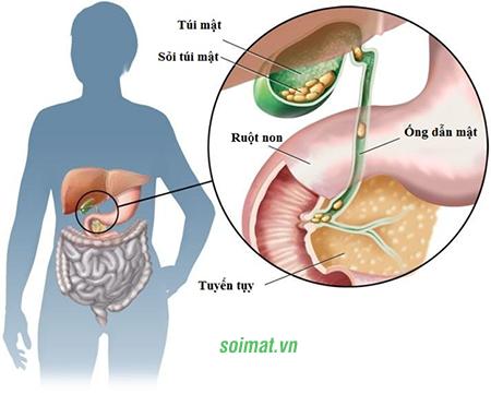 Sỏi mật là yếu tố nguy cơ chính làm phát sinh ung thư đường mật, ung thư túi mật
