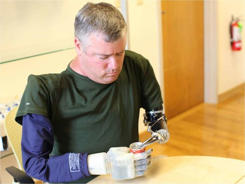 A Paralyzed Man Gets A Prosthetic Hand And Also Can Feel