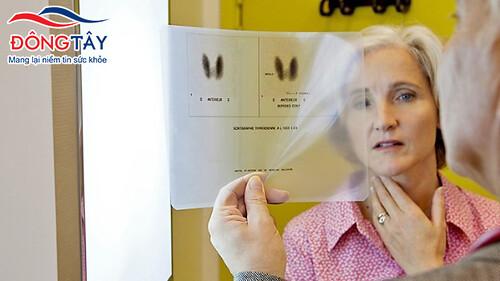 Biến chứng rung nhĩ do bệnh cường giáp nên được phát hiện và điều trị sớm