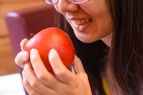 [台南] 用陶瓷補蛀牙!?佳美牙醫真是高科技 (8)