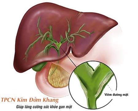 Xơ gan mật nguyên phát do viêm tắc đường mật trong gan