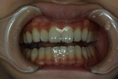 如何避免牙齒美白造成不適?那些權泓牙醫黃泓傑醫師教我的事 (13)