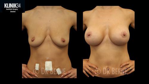 bröstlyft klinik34 facebook.034