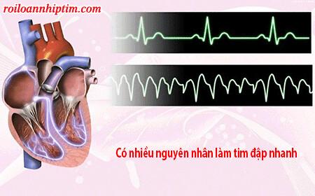 Tại sao tim đập nhanh luôn là mối quan tâm hàng đầu của người bệnh và bác sỹ