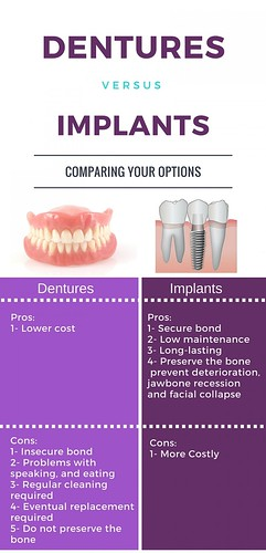 Important Facts to Know About Dentures and Implants