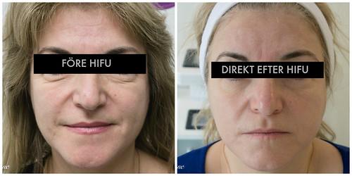 HIFU ansikte1