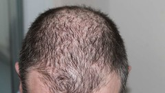 how to stop hair loss after pregnancy