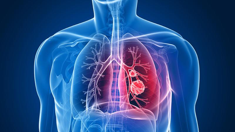 Ilustrasi kanker paru-paru