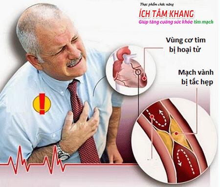 Đau thắt ngực là dấu hiệu điển hình của nhồi máu cơ tim