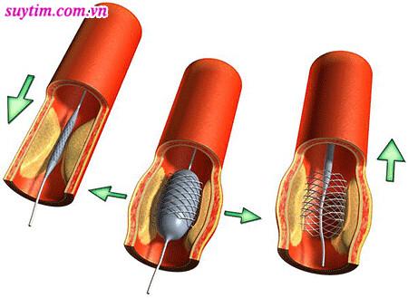 Nong mạch vành và đặt stent giúp tái tưới máu cơ tim