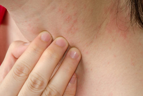 Obat Alergi Gatal Bentol Kulit Akibat Alergi Dingin