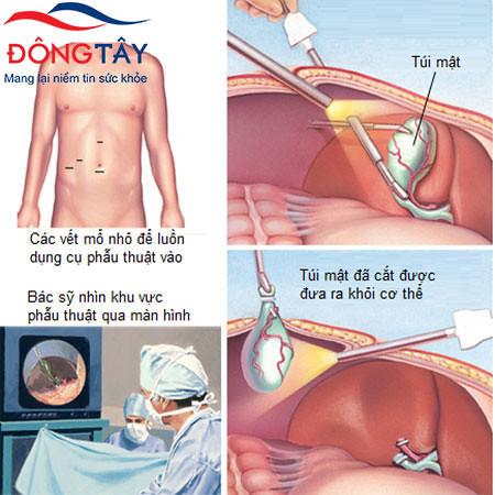 Mổ sỏi túi mật chủ yếu thực hiện bằng phẫu thuật nội soi