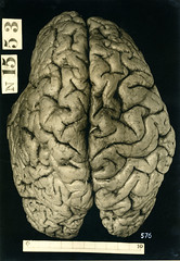 Brain of an Alcoholic Vagrant, Myrtelle M. Canavan (1914)