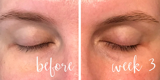 before and week 3 lashes_no makeup eyes closed