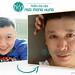 Phẫu thuật mí mắt nam giới by dinhphuc1805