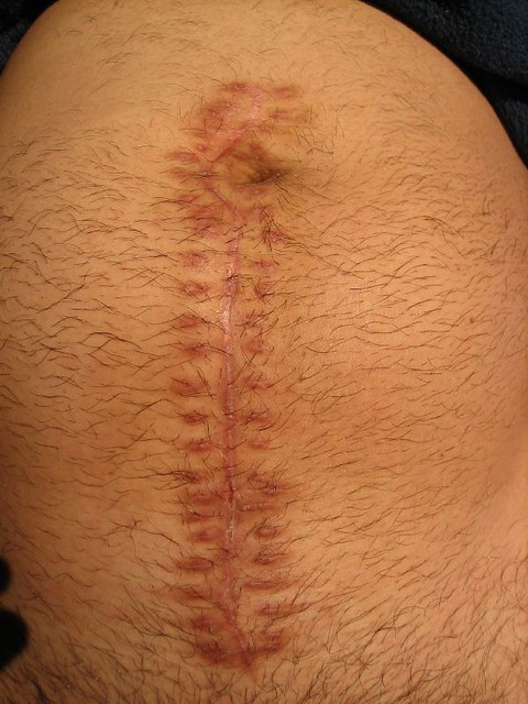 Ruptured Appendix Mid Line Incision Scar Flickr
