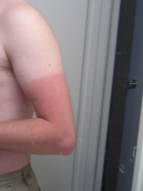 Crazy tan line
