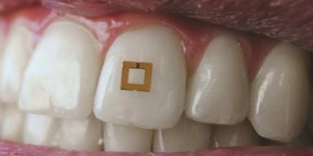 Un capteur minuscule sur votre dent pourrait vous aider à rester en bonne santé