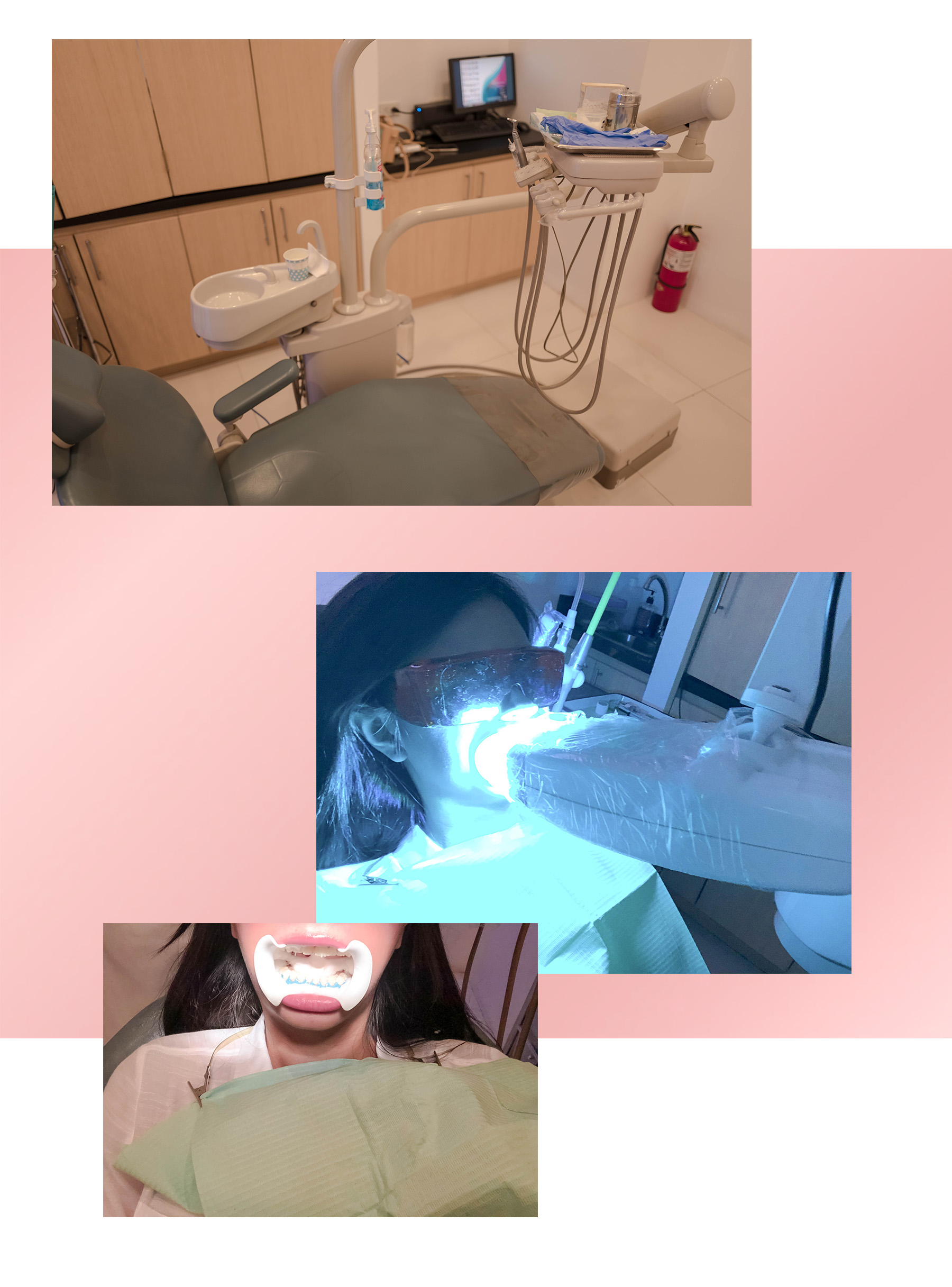 VV Skin Teeth Whitening 1