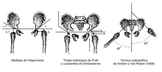 Figura 19 - Medidas Radiológicas en la DDC