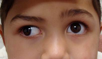 Obat Tetes Mata Juling Di Apotik