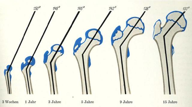 Figura 27 - Ángulos del fémur desarroolllo