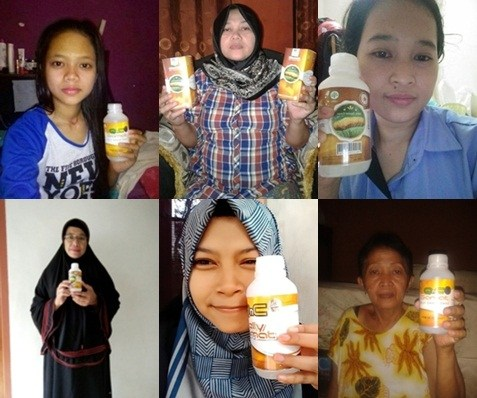 Obat Alami Penyakit Kulit Dyshidrotic Eczema