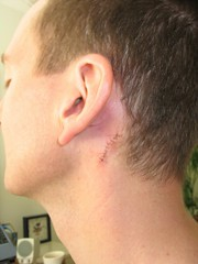 Stitches (post op day 1)