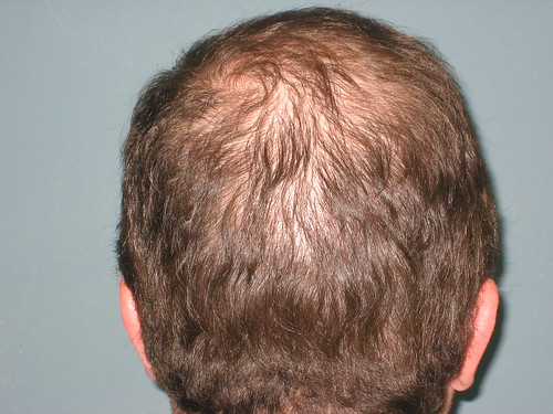 68 Days After Bosley Hair Restoration Procedure