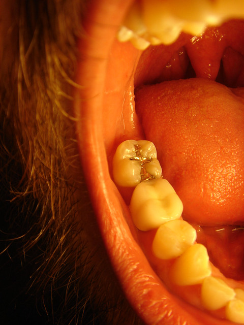 Image Result For Tooth Colored Fillings