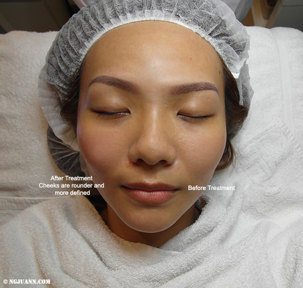 Skin Lifting Facial