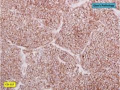 Qiao's Pathology: Ovarian Dysgerminoma