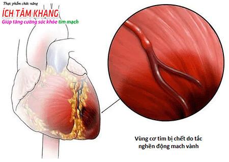Nhồi máu cơ tim gây hoại tử cơ tim